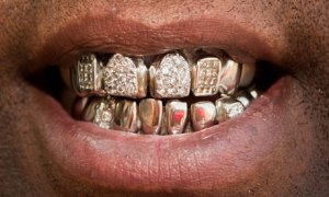 Big picture: Gold teeth
